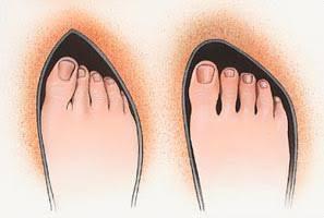 taraklı ayaklar için ayakkabı seçimi